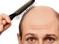 ۱۰ علت مهم ریزش مو