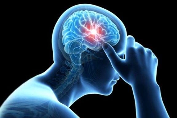 هر ۵ دقیقه یک سکته مغزی