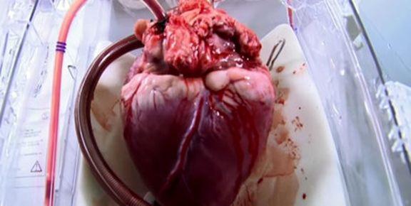 انتقال هوایی قلب جوان ٢٤ساله از یزد به تهران