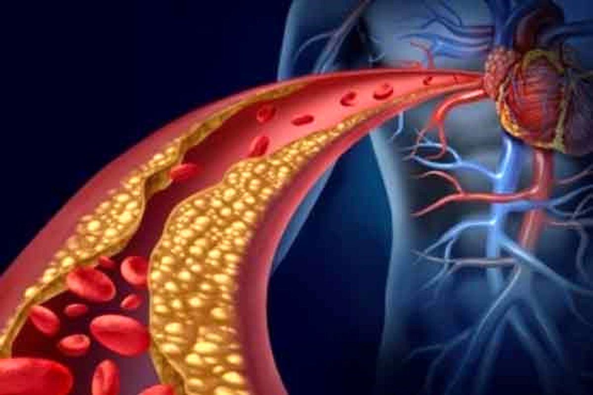 بروز لختگیهای خونی در عروق پای بیماران کووید ۱۹