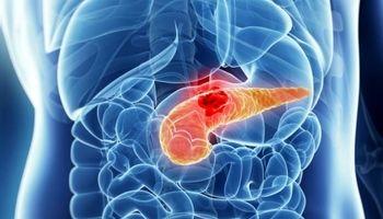 قند خون خطر چه سرطانهایی را افزایش میدهد؟