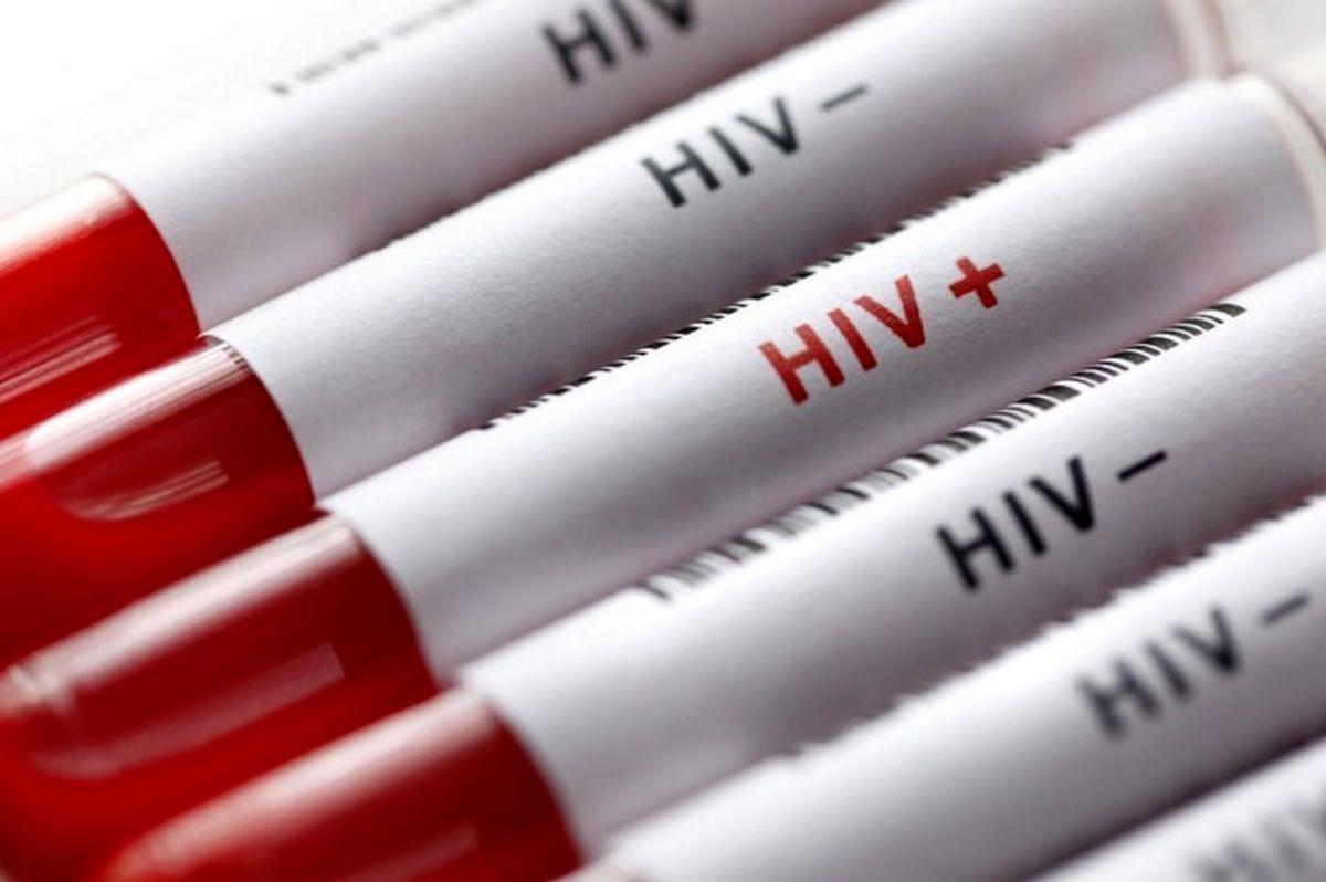 """با این ۳اصل خود را در برابر ابتلا به """"ایدز"""" واکسینه کنید"""