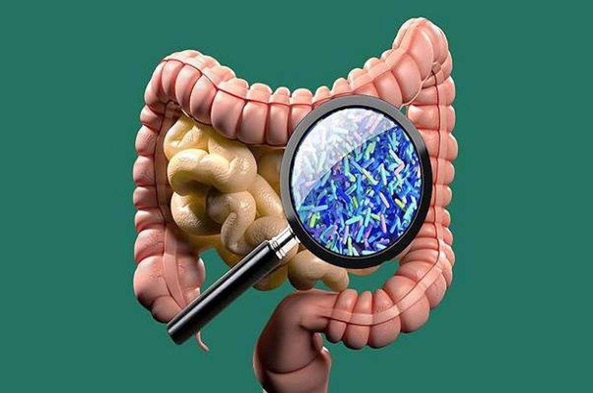بهبود سلامت روده موجب افزایش طول عمر می شود