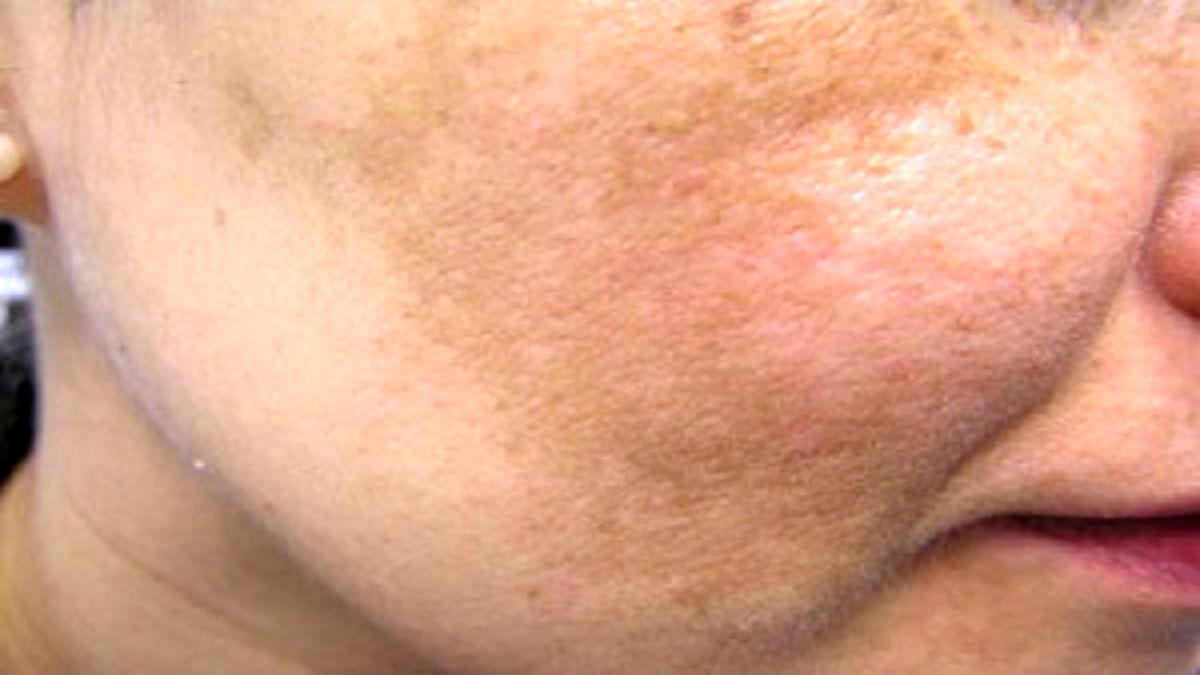 لکه های پوستی و علل بروز آن