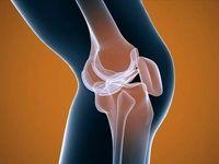 دردهای استخوانی نشانه چه بیماری است؟