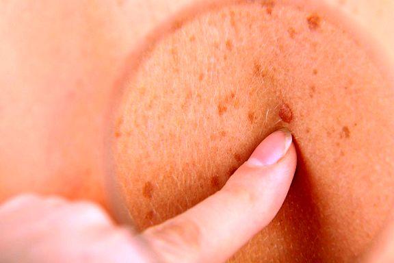 کشف درمان جدید برای سرطان پوست